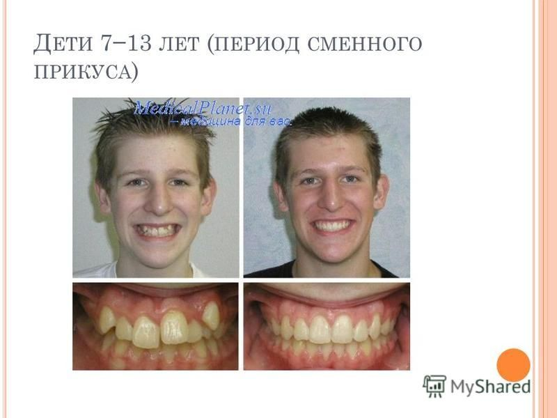 Д ЕТИ 713 ЛЕТ ( ПЕРИОД СМЕННОГО ПРИКУСА )