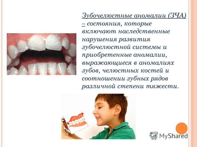 Зубочелюстные аномалии (ЗЧА) – состояния, которые включают наследственные нарушения развития зубочелюстной системы и приобретенные аномалии, выражающиеся в аномалиях зубов, челюстных костей и соотношении зубных рядов различной степени тяжести.