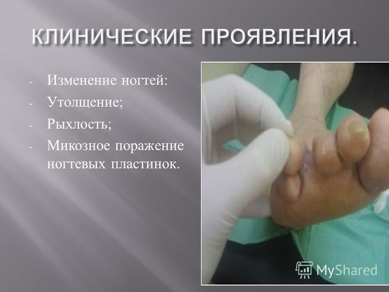 - Изменение ногтей : - Утолщение ; - Рыхлость ; - Микозное поражение ногтевых пластинок.