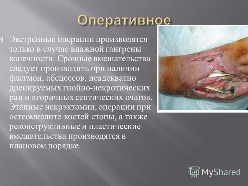 Экстренные операции производятся только в случае влажной гангрены конечности. Срочные вмешательства следует производить при наличии флегмон, абсцессов, неадекватно дренируемых гнойно - некротических ран и вто  ричных септических очагов. Этапные некр