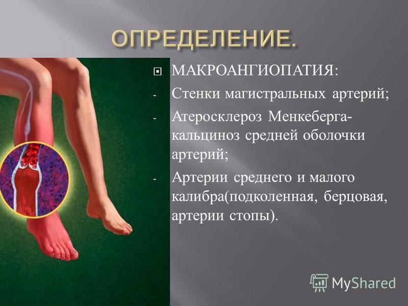 МАКРОАНГИОПАТИЯ : - Стенки магистральных артерий ; - Атеросклероз Менкеберга - кальциноз средней оболочки артерий ; - Артерии среднего и малого калибра ( подколенная, берцовая, артерии стопы ).