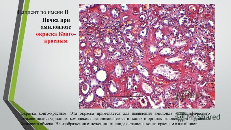 Почка при амилоидозе окраска Конго- красным Окраска конго-красным. Эта окраска применяется для выявления амилоида – специфического белково-полисахаридного комплекса накапливающегося в тканях и органах человека при нарушении белкового обмена. На изобр