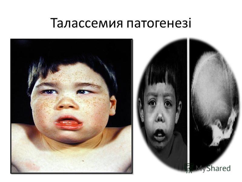 Талассемия патогенезі