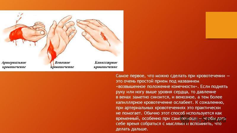 Самое первое, что можно сделать при кровотечении это очень простой прием под названием «возвышенное положение конечности». Если поднять руку или ногу выше уровня сердца, то давление в венах заметно снизится, и венозное, а тем более капиллярное кровот