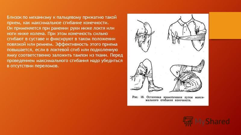 Близок по механизму к пальцевому прижатию такой прием, как максимальное сгибание конечности. Он применяется при ранении руки ниже локтя или ноги ниже колена. При этом конечность сильно сгибают в суставе и фиксируют в таком положении повязкой или ремн