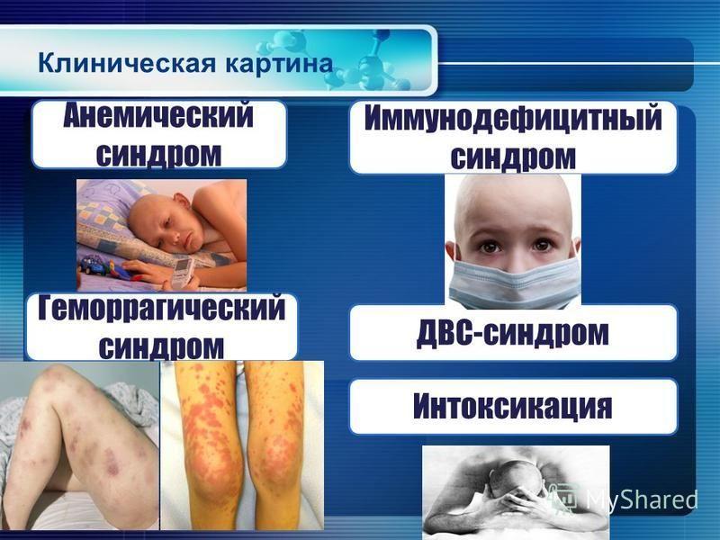 Клиническая картина Анемический синдром Иммунодефицитный синдром Геморрагический синдром ДВС-синдром Интоксикация