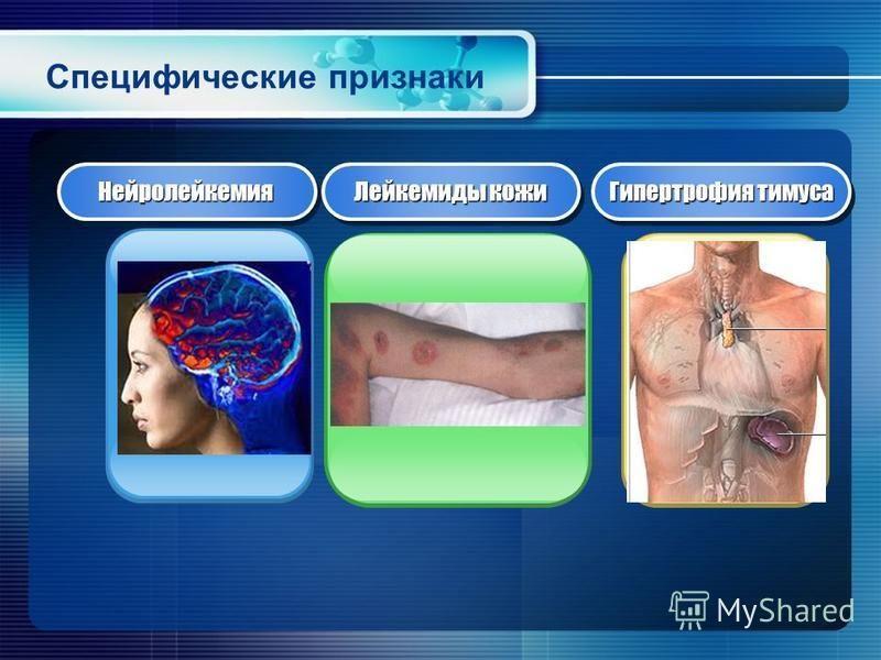 Специфические признаки Нейролейкемия Нейролейкемия Лейкемиды кожи Гипертрофия тимуса