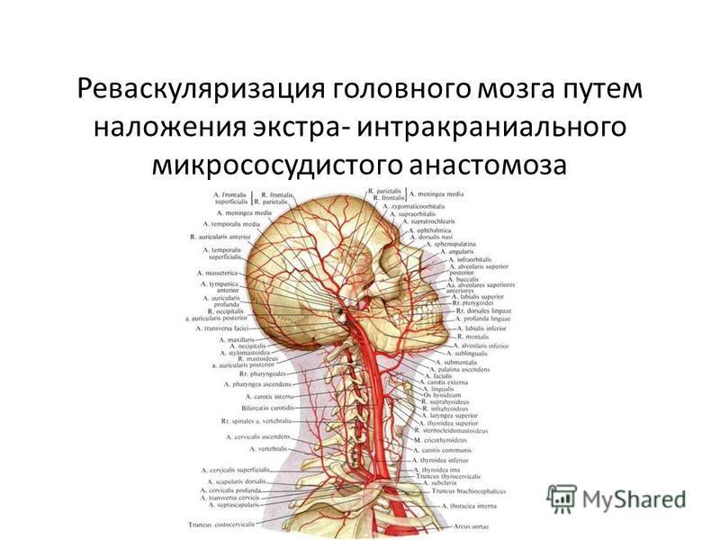 Реваскуляризация головного мозга путем наложения экстра- интракраниального микрососудистого анастомоза