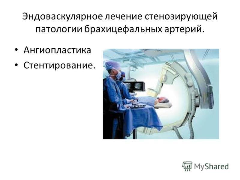 Эндоваскулярное лечение стенозирующей патологии брахицефальных артерий. Ангиопластика Стентирование.