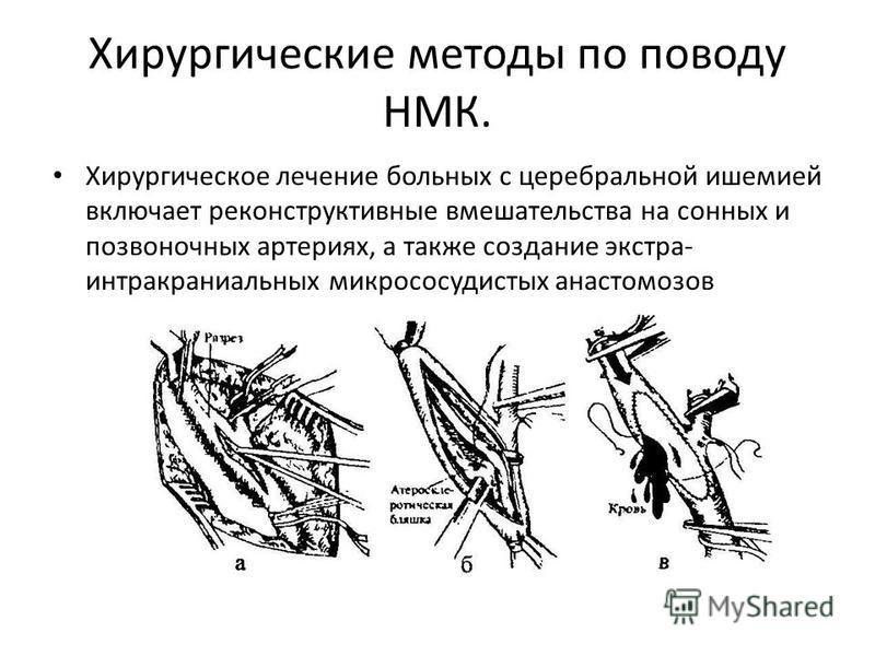 Хирургические методы по поводу НМК. Хирургическое лечение больных с церебральной ишемией включает реконструктивные вмешательства на сонных и позвоночных артериях, а также создание экстра- интракраниальных микрососудистых анастомозов
