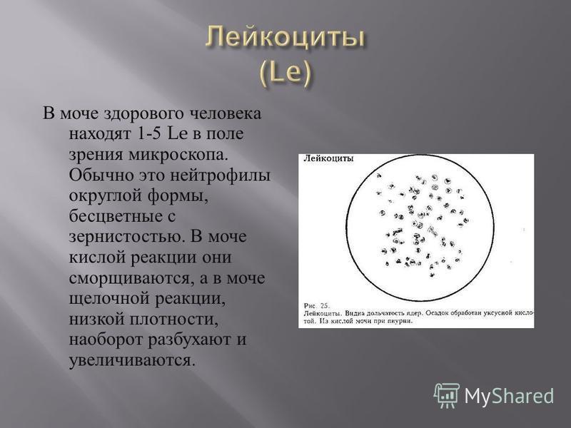 В моче здорового человека находят 1-5 Le в поле зрения микроскопа. Обычно это нейтрофилы округлой формы, бесцветные с зернистостью. В моче кислой реакции они сморщиваются, а в моче щелочной реакции, низкой плотности, наоборот разбухают и увеличиваютс