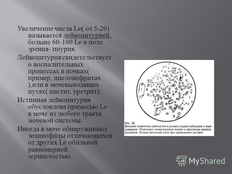Увеличение числа Le( от 5-20) называется лейкоцитурией, больше 60-100 Le в поле зрения - пиурия. Лейкоцитурия свидетельствует о воспалительных процессах в почках ( пример, пиелонефритах ), или в мочевыводящих путях ( цистит, уретрит ). Истинная лейко
