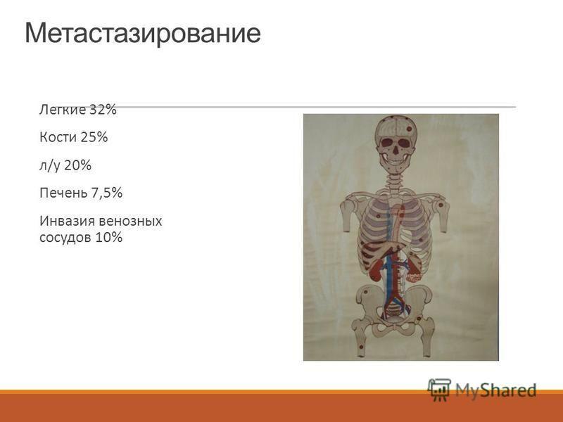 Метастазирование Легкие 32% Кости 25% л/у 20% Печень 7,5% Инвазия венозных сосудов 10%