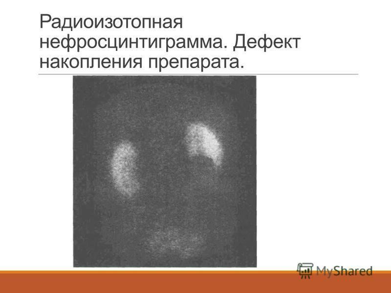 Радиоизотопная нефросцинтиграмма. Дефект накопления препарата.