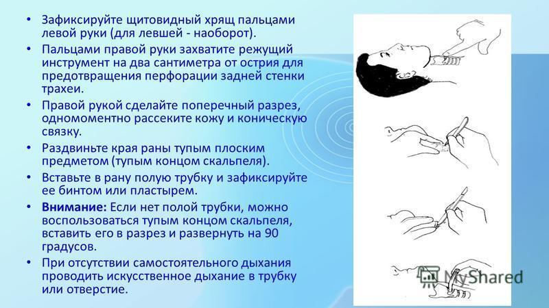 Зафиксируйте щитовидный хрящ пальцами левой руки (для левшей - наобооот). Пальцами правой руки захватите режущий инструмент на два сантиметра от острия для предотвращения перфорации задней стенки трахеи. Правой рукой сделайте поперечный разрез, одном