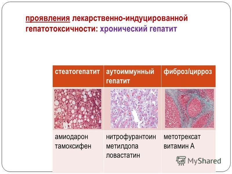 проявления лекарственно-индуцированной гепатотоксичности: хронический гепатит стеатогепатитаутоиммунный гепатит фиброз/цирроз амиодарон тамоксифен нитрофурантоин метилдопа ловастатин метотрексат витамин А