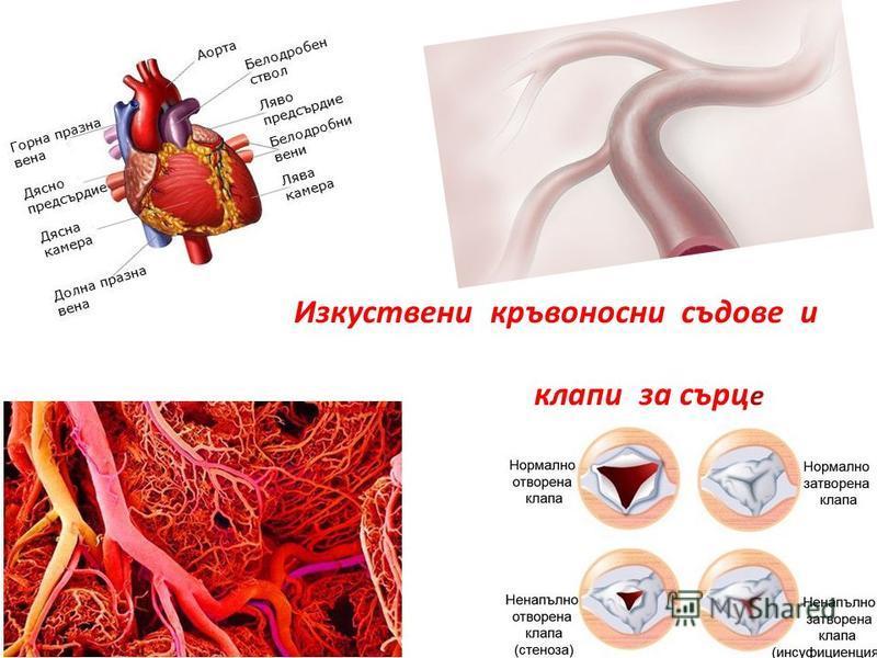 Изкуствени кръвоносни съдове и клапи за сърц е
