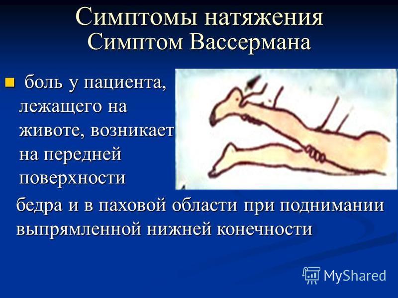 Симптом Вассермана боль у пациента, лежащего на животе, возникает на передней поверхности боль у пациента, лежащего на животе, возникает на передней поверхности Симптомы натяжения бедра и в паховой области при поднимании выпрямленной нижней конечност