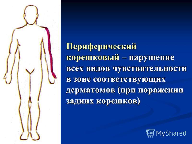Периферический корешковый – нарушение всех видов чувствительности в зоне соответствующих дерматомов (при поражении задних корешков)