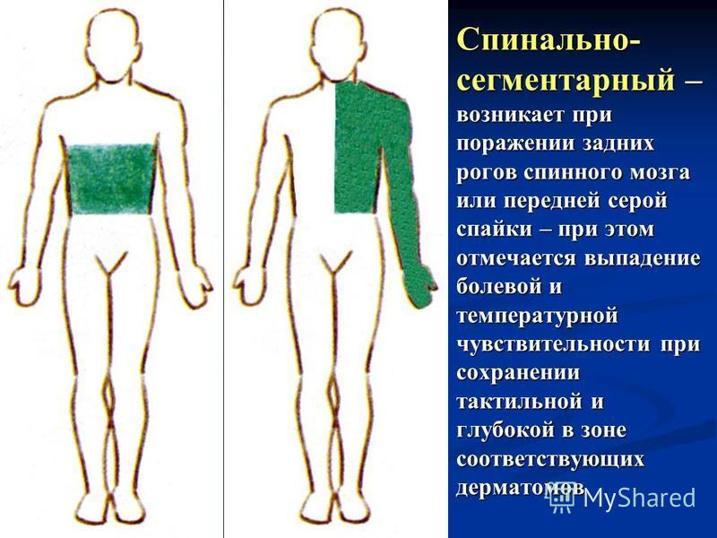Спинально- сегментарный – возникает при поражении задних рогов спинного мозга или передней серой спайки – при этом отмечается выпадение болевой и температурной чувствительности при сохранении тактильной и глубокой в зоне соответствующих дерматомов