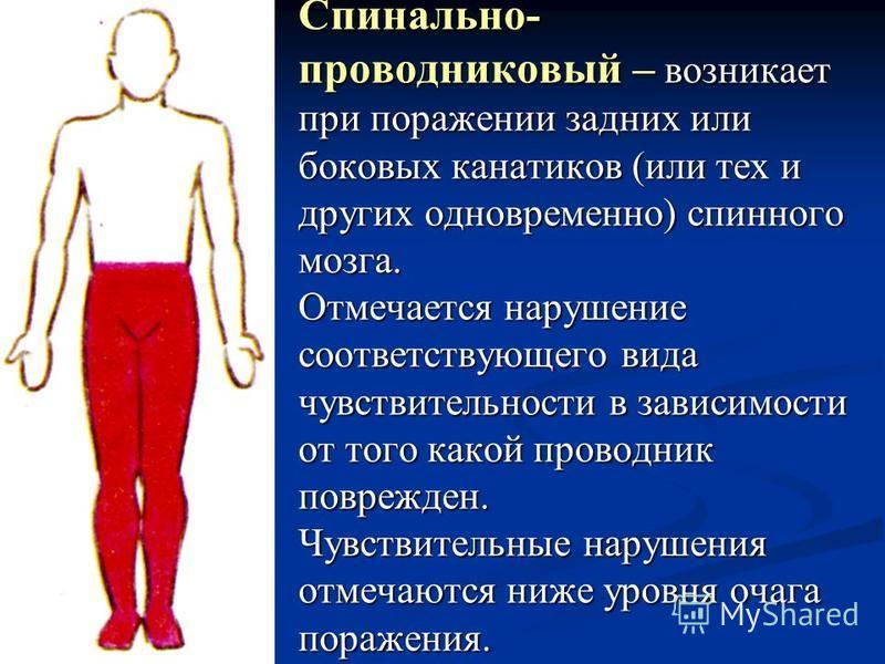 Спинально- проводниковый – возникает при поражении задних или боковых канатиков (или тех и других одновременно) спинного мозга. Отмечается нарушение соответствующего вида чувствительности в зависимости от того какой проводник поврежден. Чувствительны