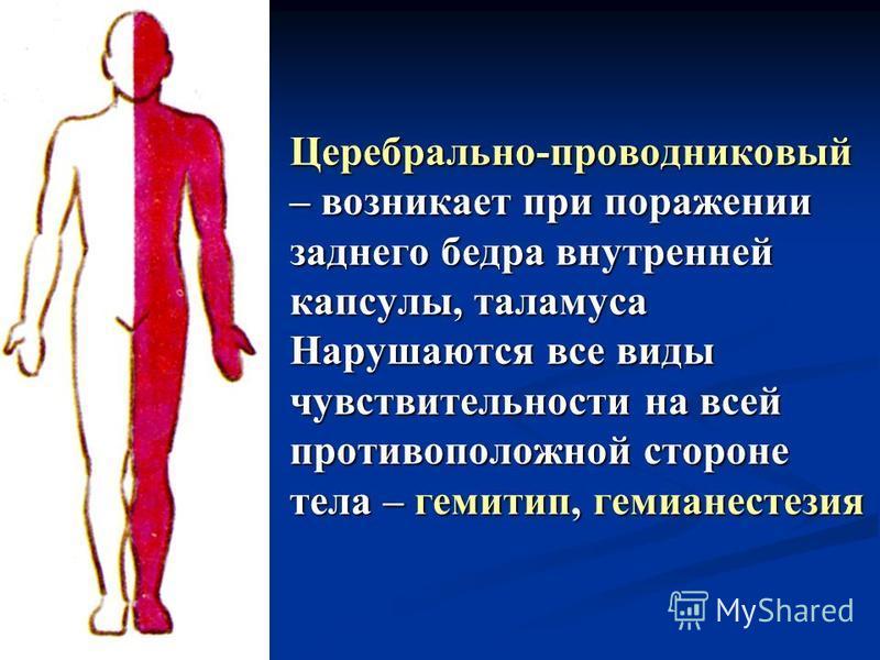 Церебрально-проводниковый – возникает при поражении заднего бедра внутренней капсулы, таламуса Нарушаются все виды чувствительности на всей противоположной стороне тела – гемитип, гемианестезия