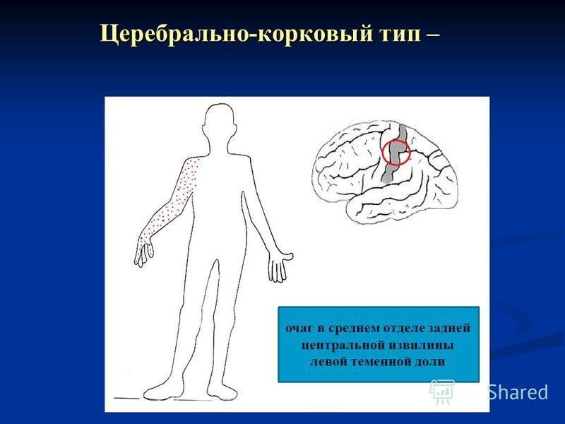 Церебрально-корковый тип – очаг в среднем отделе задней центральной извилины левой теменной доли