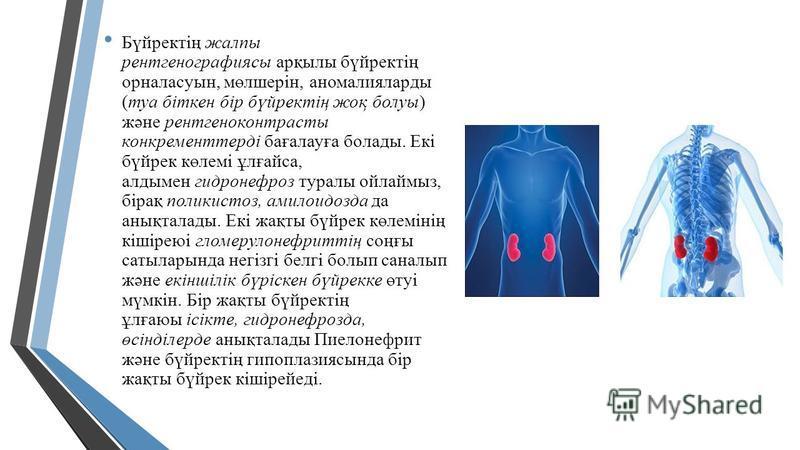 Бүйректің жалпы рентгенографиясы арқылы бүйректің орналасуын, мөлшерін, аномалияларды (туа біткен бір бүйректің жоқ болуы) және рентгеноконтрастный конкремент терді бағалауға болады. Екі бүйрек көлемі ұлғайса, алдымен гидронефроз туралы ойлаймыз, бір