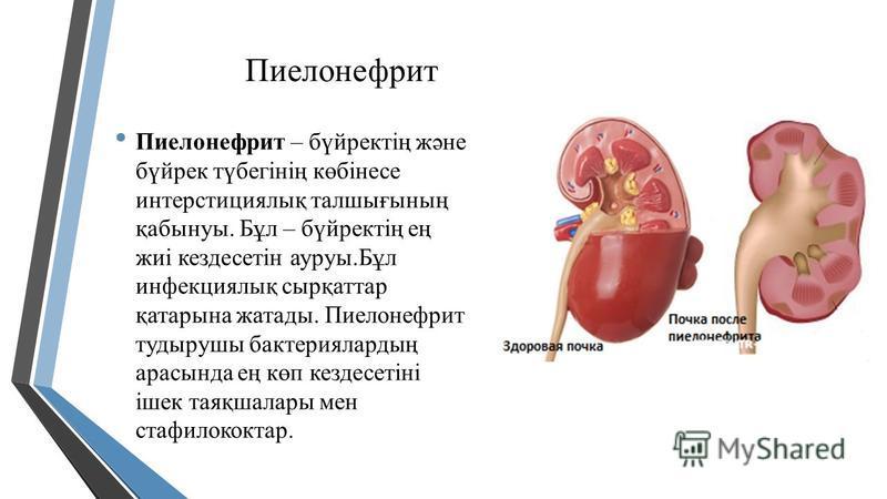 Пиелонефрит Пиелонефрит – бүйректің және бүйрек түбегінің көбінесе интерстициялық талшығының қабынуы. Бұл – бүйректің ең жиі кездесетін ауруы.Бұл инфекциялық сырқаттар қатарына жатады. Пиелонефрит тудырушы бактериялардың арасында ең көп кездесетіні і