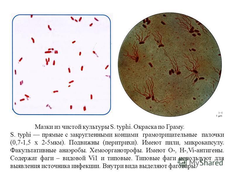 Мазки из чистой культуры S. typhi. Окраска по Граму. S. typhi прямые с закругленными концами грамотрицательные палочки (0,7-1,5 х 2-5 мкм). Подвижны (перитрихи). Имеют пили, микрокапсулу. Факультативные анаэробы. Хемоорганотрофы. Имеют О-, Н-,Vi-анти