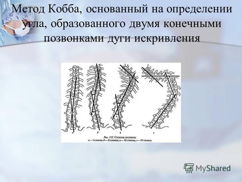 Метод Кобба, основанный на определении угла, образованного двумя конечными позвонками дуги искривления
