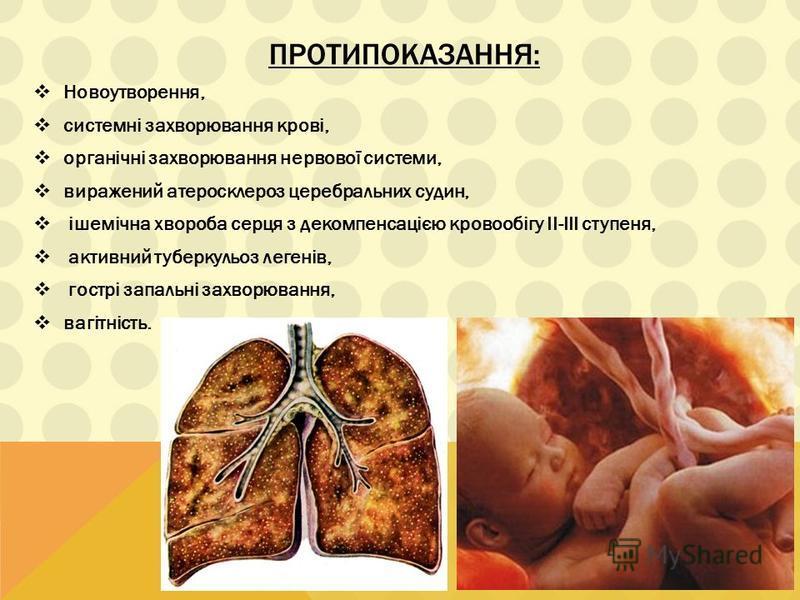 ПРОТИПОКАЗАННЯ: Новоутворення, системні захворювання крові, органічні захворювання нервової системи, виражений атеросклероз церебральних судин, ішемічна хвороба серця з декомпенсацією кровообігу II-III ступеня, активний туберкульоз легенів, гострі за