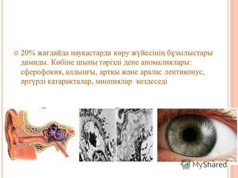 20% жағдайда науқастарда көру жүйесінің бұзылыстары демиды. Көбіне шсыны тәрізді дене аномалия лары: сферофакия, алдыңғы, артқы және аралас лентиконус, әртүрлі катаракталар, миопиялар кездеседі