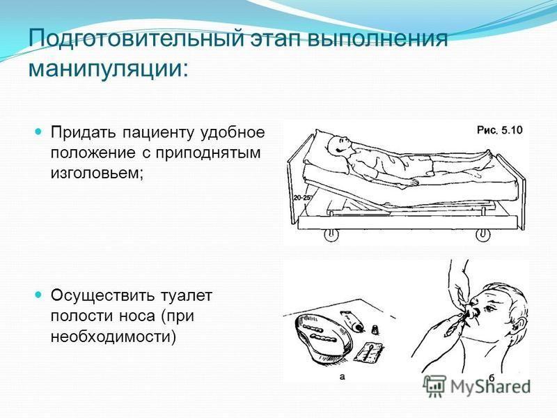 Придать пациенту удобное положение с приподнятым изголовьем; Осуществить туалет полости носа (при необходимости) Подготовительный этап выполнения манипуляции: