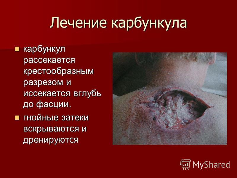 Лечение карбункула карбункул рассекается крестообразным разрезом и иссекается вглубь до фасции. карбункул рассекается крестообразным разрезом и иссекается вглубь до фасции. гнойные затеки вскрываются и дренируют ся гнойные затеки вскрываются и дренир