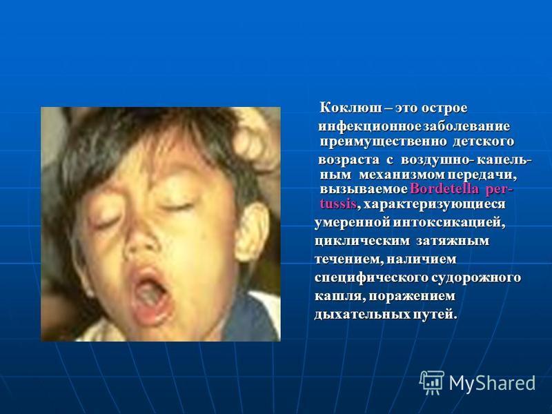Коклюш – это острое инфекционное заболевание преимущественно детского инфекционное заболевание преимущественно детского возраста с воздушно- капельным механизмом передачи, вызываемое Bordetella per- tussis, характеризующиеся возраста с воздушно- капе