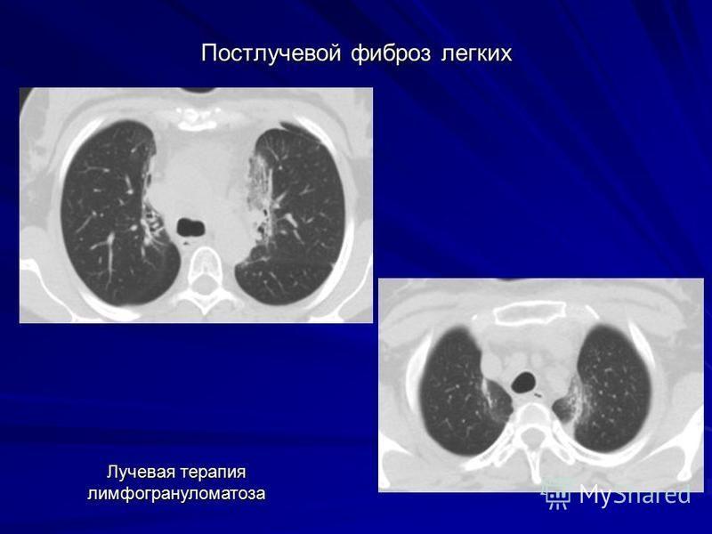 Постлучевой фиброз легких Лучевая терапия лимфогрануломатоза