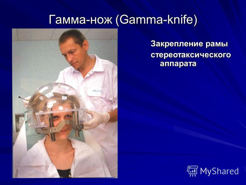 Гамма-нож (Gamma-knife) Закрепление рамы стереотаксического аппарата