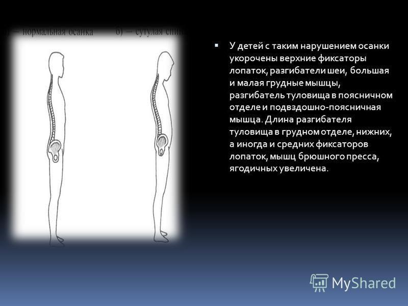 У детей с таким нарушением осанки укорочены верхние фиксаторы лопаток, разгибатели шеи, большая и малая грудные мышцы, разгибатель туловища в поясничном отделе и подвздошно-поясничная мышца. Длина разгибателя туловища в грудном отделе, нижних, а иног