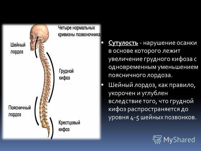 Сутулость - нарушение осанки в основе которого лежит увеличение грудного кифоза с одновременным уменьшением поясничного лордоза. Шейный лордоз, как правило, укорочен и углублен вследствие того, что грудной кифоз распространяется до уровня 4-5 шейных