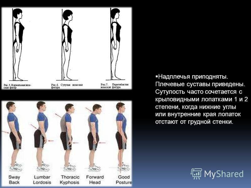 Надплечья приподняты. Плечевые суставы приведены. Сутулость часто сочетается с крыловидными лопатками 1 и 2 степени, когда нижние углы или внутренние края лопаток отстают от грудной стенки.
