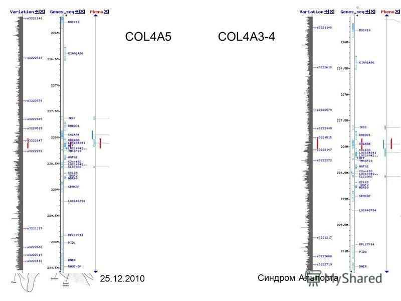25.12.2010 Синдром Альпорта COL4A5 COL4A3-4