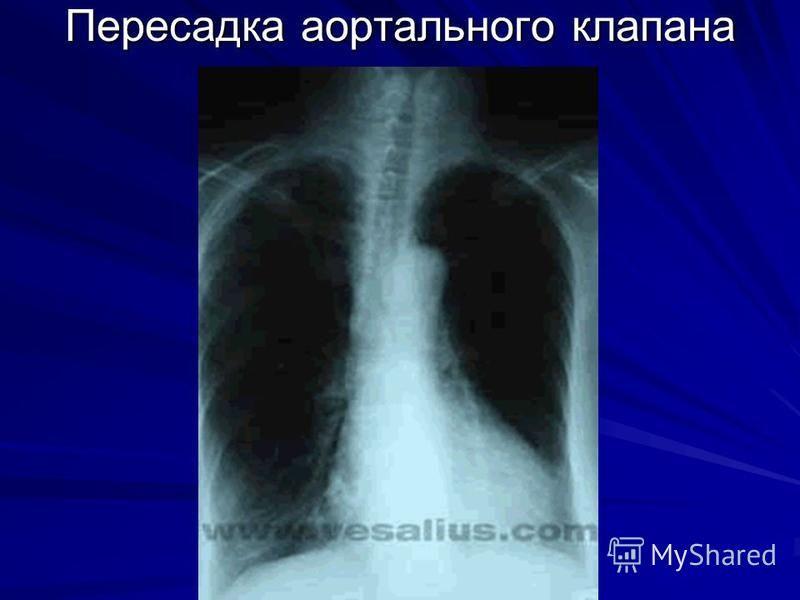 Пересадка аортального клапана