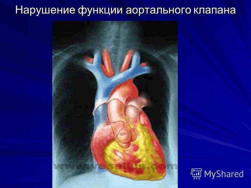 Нарушение функции аортального клапана