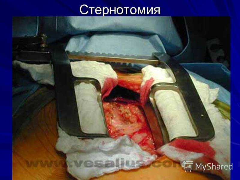 Стернотомия
