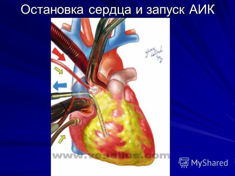 Остановка сердца и запуск АИК
