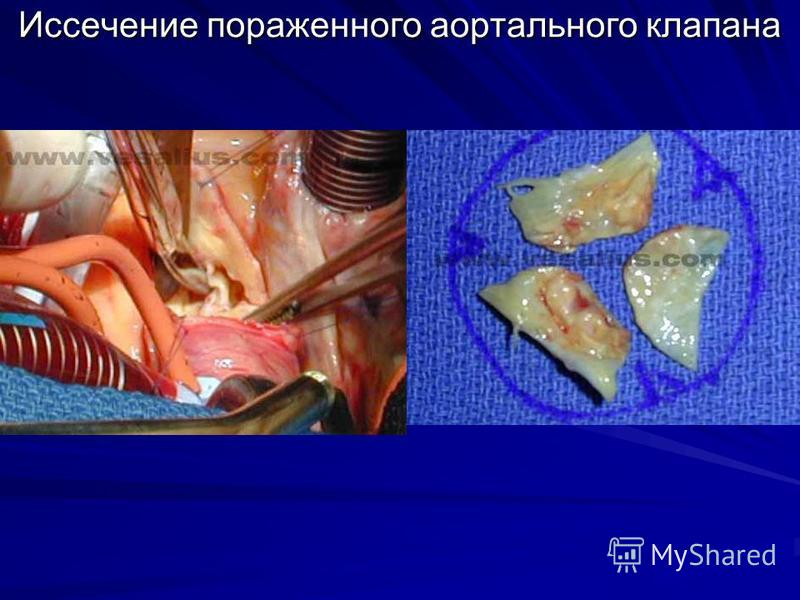 Иссечение пораженного аортального клапана