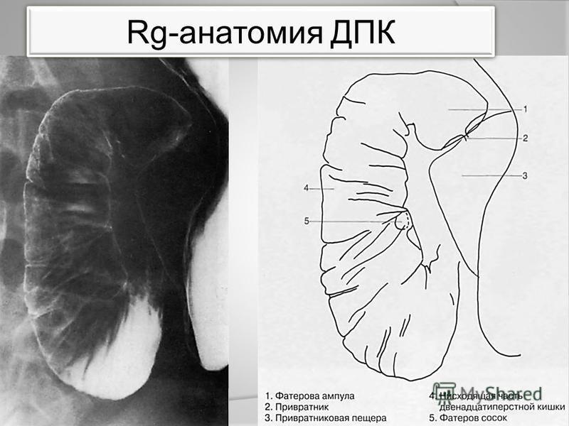 Rg-анатомия ДПК