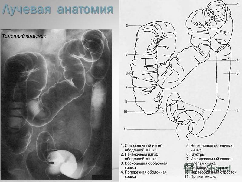 Лучевая анатомия Толстый кишечник