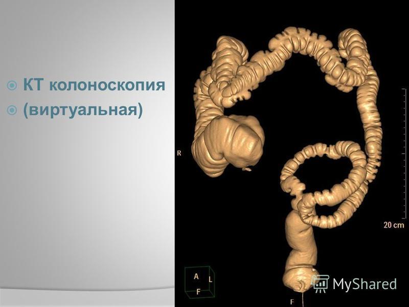 КТ колоноскопия (виртуальная)